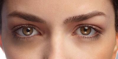 treating-dark-under-eye-circles