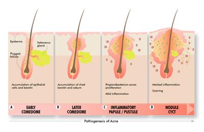acne_treatment_del_mar_ca