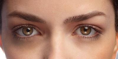 treating-dark-under-eye-circles